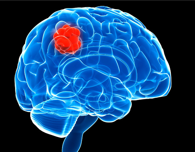 Some Important Information On Brain Tumor